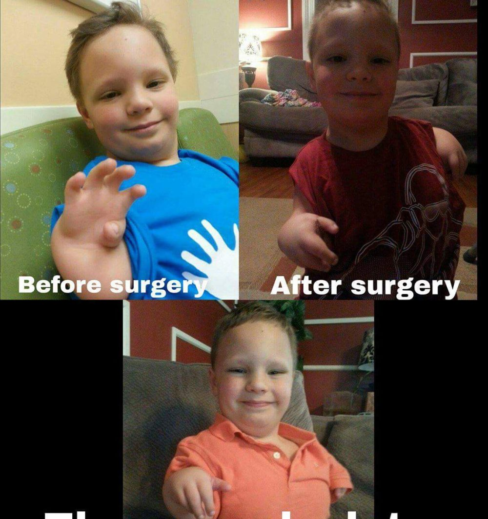 Before surgery, After surgery and after two weeks of physical therapy.